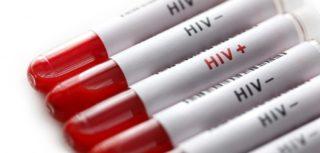 HIV - 9 απαραίτητα στοιχεία που όλοι πρέπει να γνωρίζουμε 3